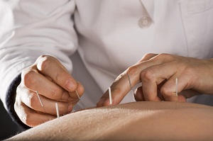 caledon acupuncture